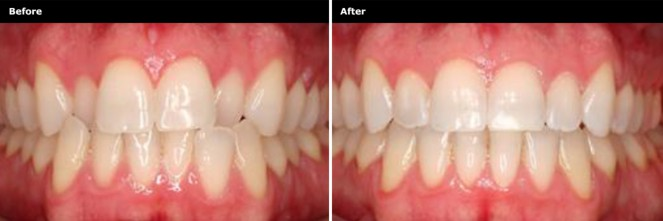 818D006_TeethStraightening_Before&After_01