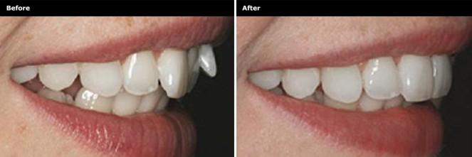 818D006_TeethStraightening_Before&After_02