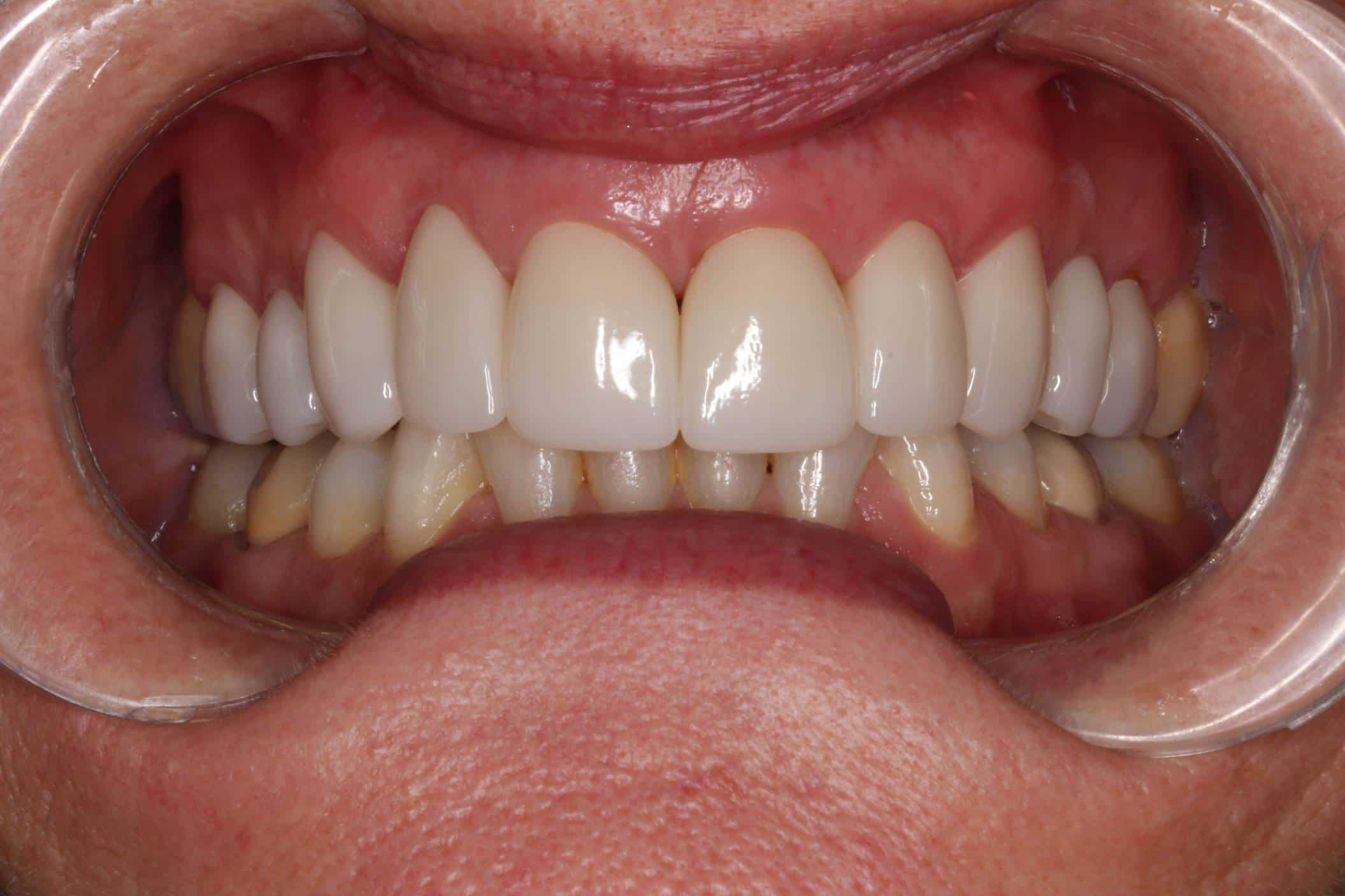 after aligning teeth