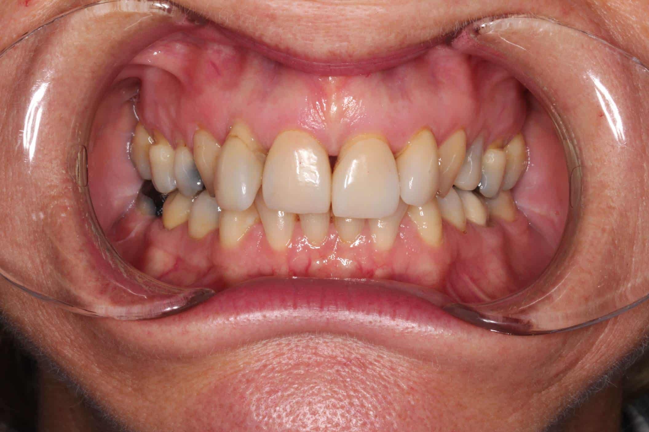 before aligning teeth