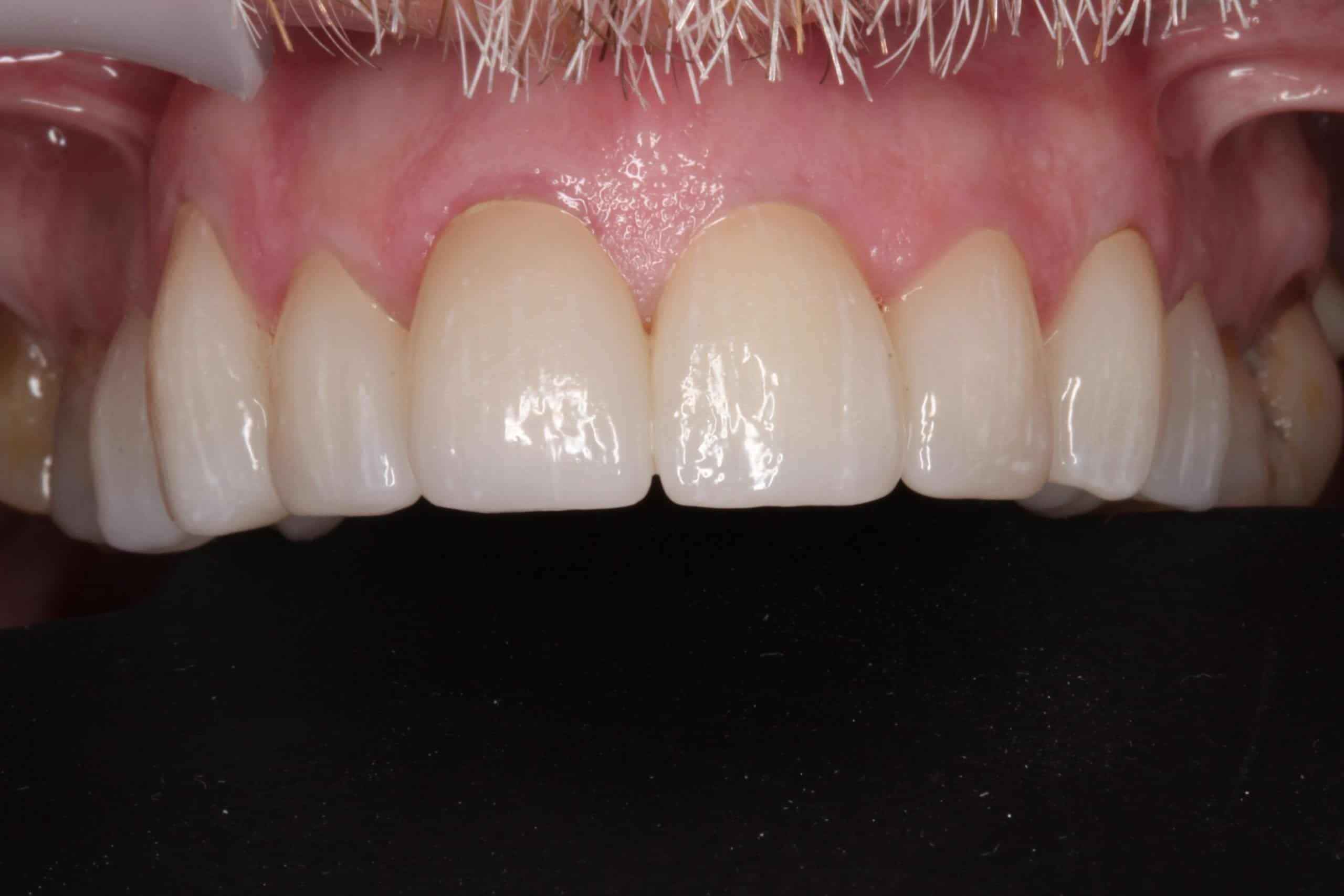 after dental crowns photo 2