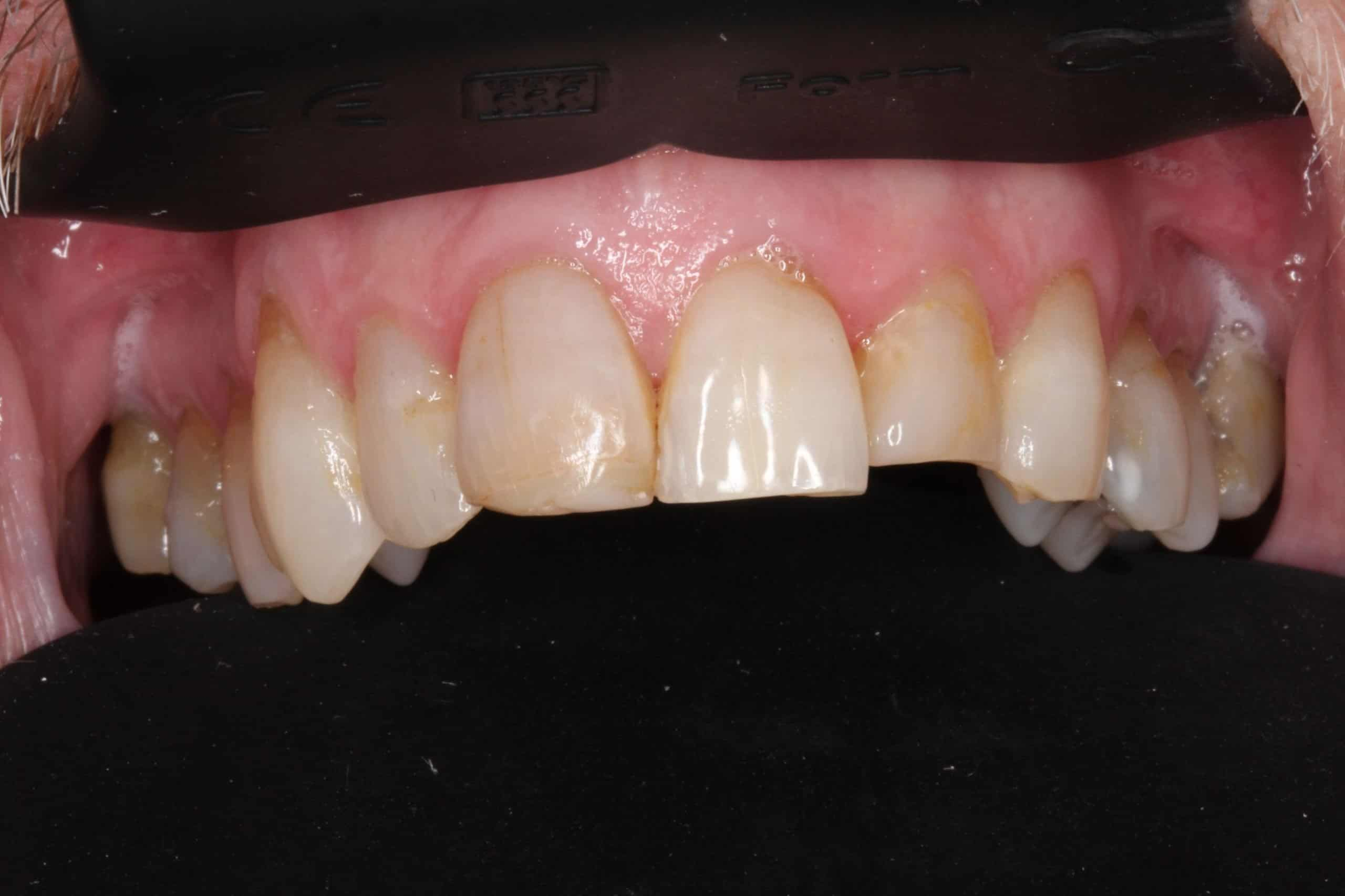 before dental crowns photo