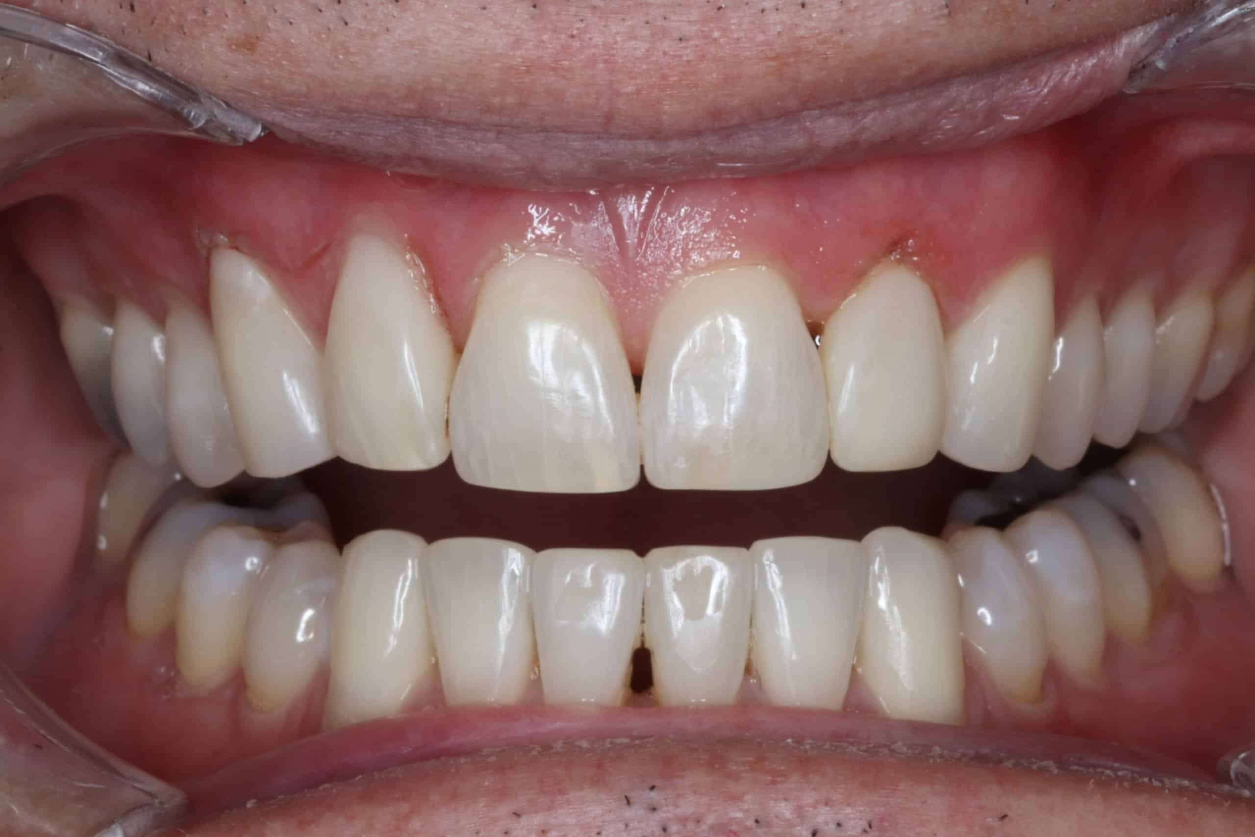 after photo cosmetic dentistry