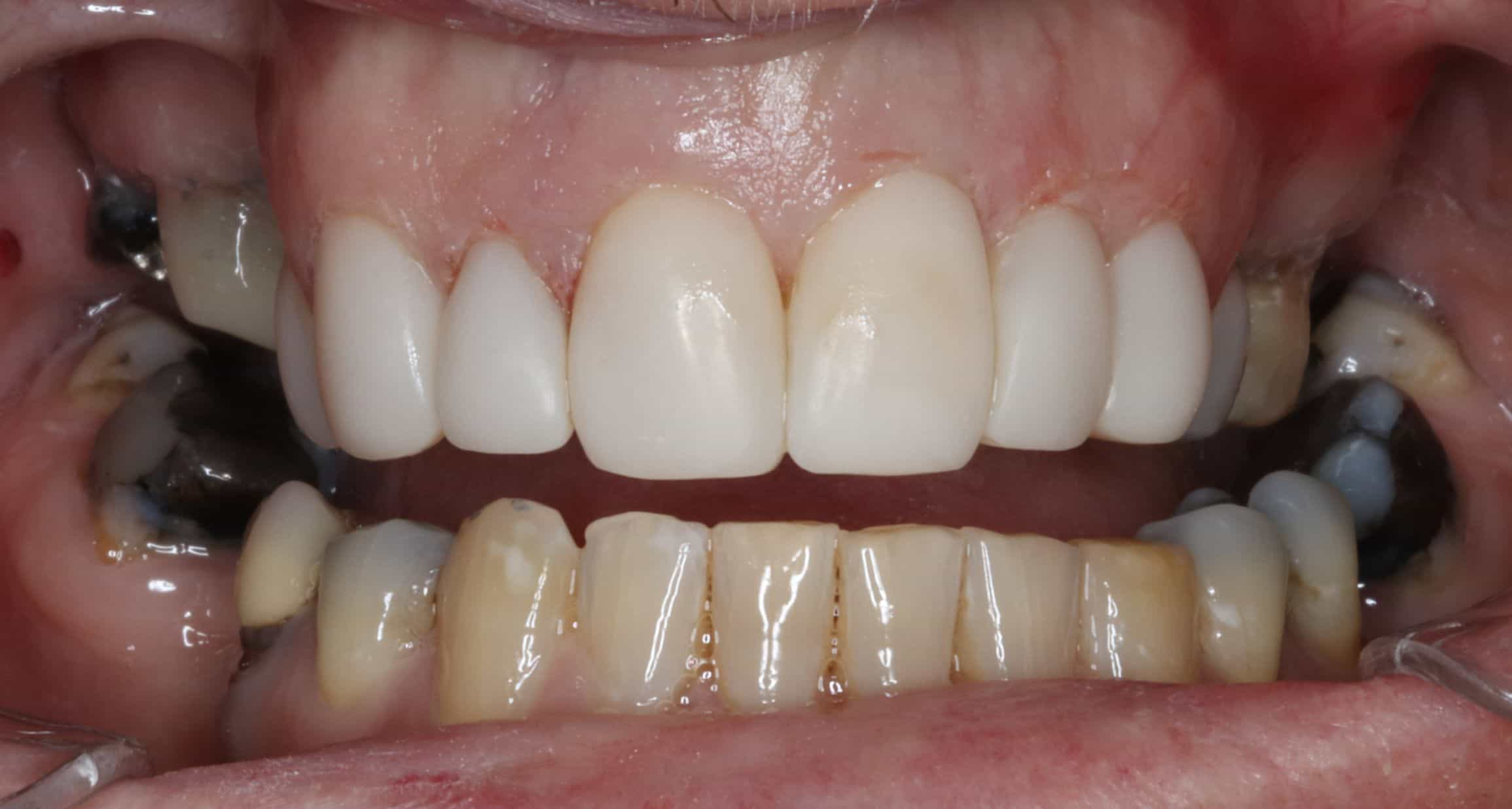 after cosmetic dentistry armadale work 2