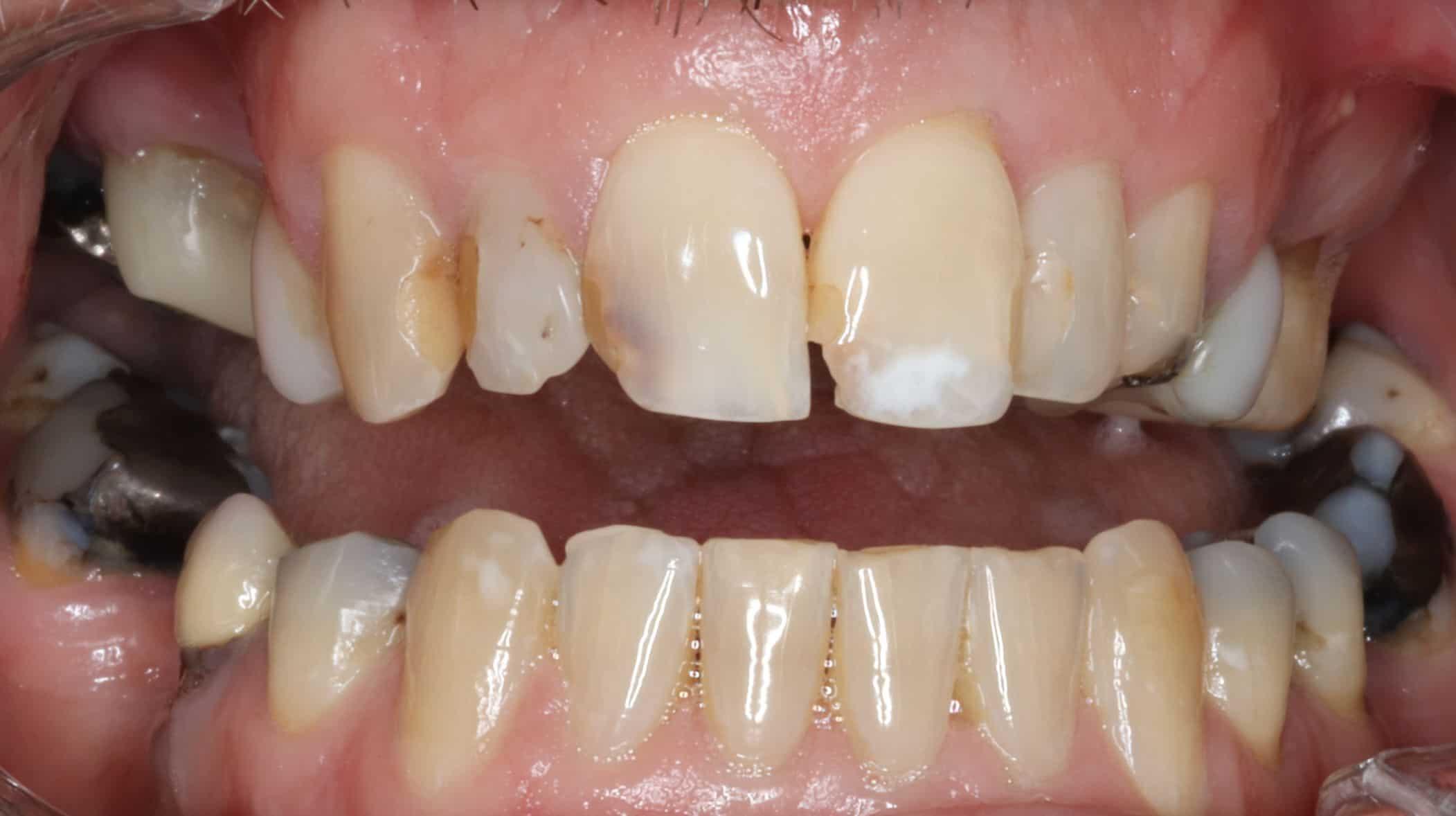 before cosmetic dentist armadale work 2