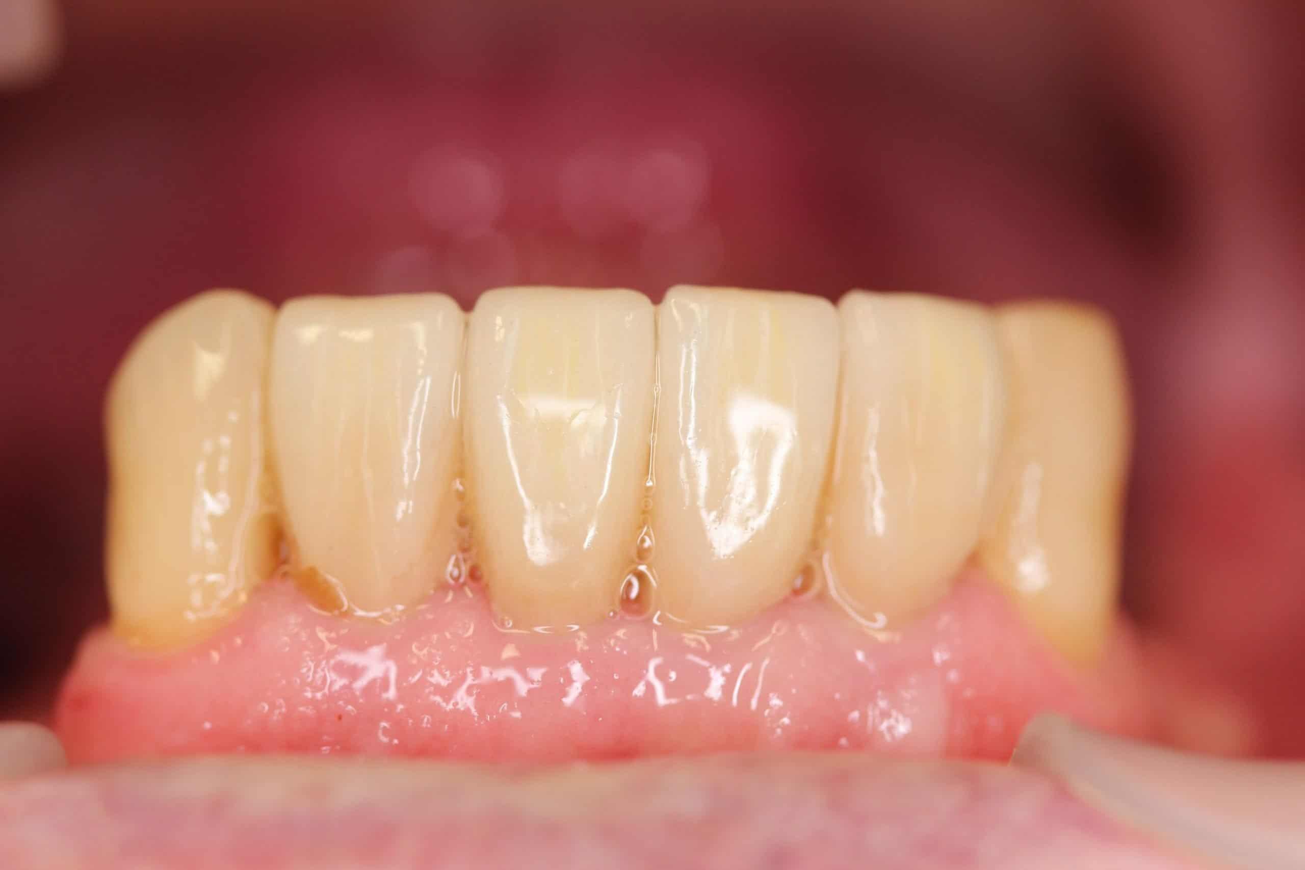 repaired broken teeth