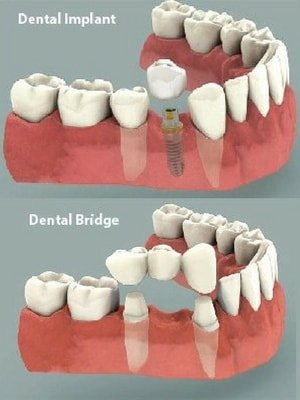 bridge vs implant