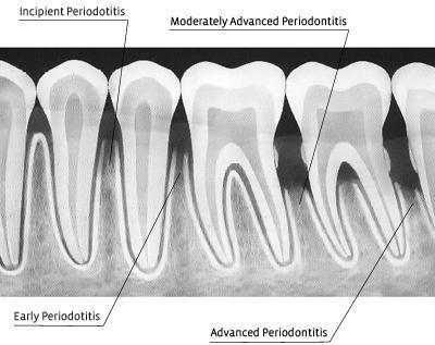 gum disease radiograph