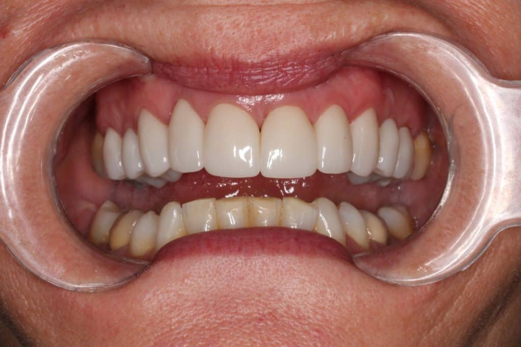 after cosmetic dentist armadale work