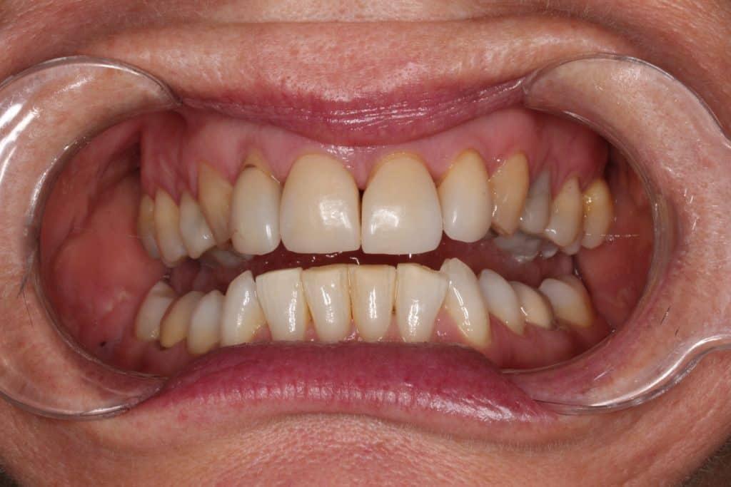 before cosmetic dentist armadale work
